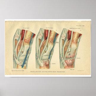 Vintage Horse Anatomy Print of Leg