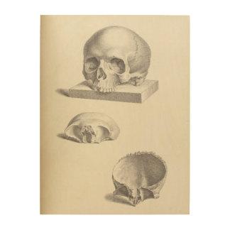 Vintage Human Skull 18x24 Wood Wall Art