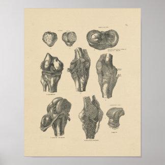 Vintage Knee Joint Anatomy 1880 Print