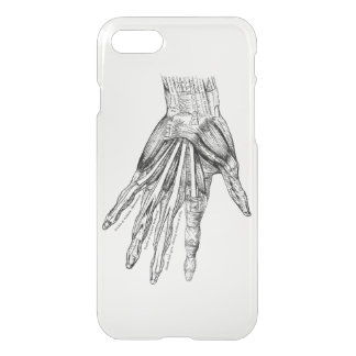 Vintage Medical Drawing Muscles of the Hand iPhone 7 Case