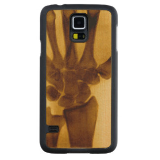 Vintage Sepia Human Hand X-Ray Carved® Maple Galaxy S5 Slim Case