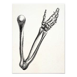 Vintage Skeleton Arm Bone Personalized Retro Bones Photo Print