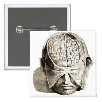 Vintage Skull Brain Medical Illustration Brains 2 Inch Square Button