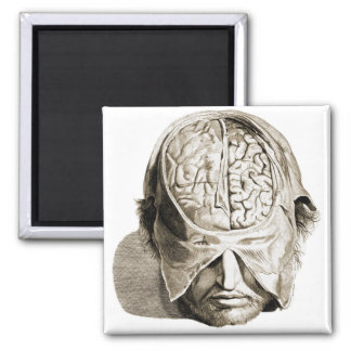 Vintage Skull Brain Medical Illustration Brains Magnet