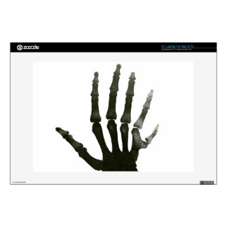 "Vintage X-ray Six-fingered Hand Skeleton Decal For 13"" Laptop"