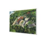 Vista aérea del este de los argumentos del fuerte impresión de lienzo