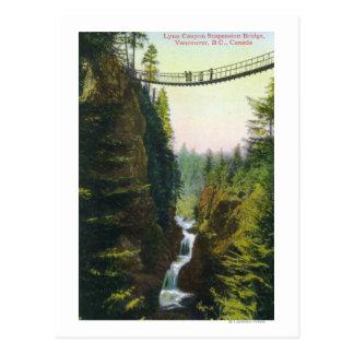 Vista de puente colgante del barranco de Lynn Postal