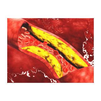 Vista microscópica de la placa gorda dentro de la impresion en lona