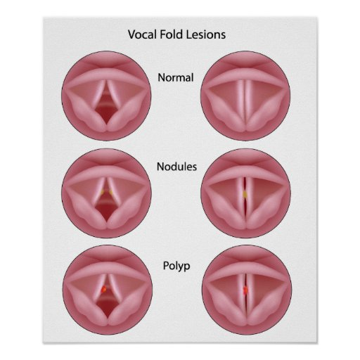 Vocal cord lesions Poster
