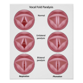 Vocal cord paralysis Poster