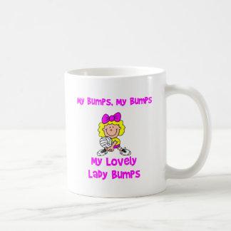 VolleyChick My Bumps Coffee Mug