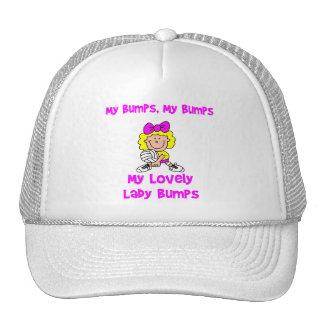 VolleyChick My Bumps Trucker Hat