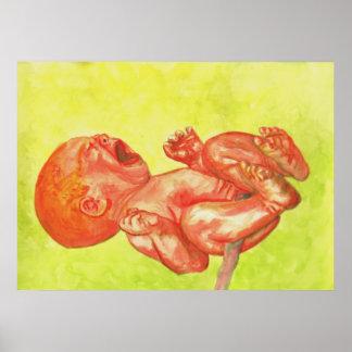 Wailer recién nacido del bebé póster