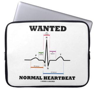 Wanted Normal Heartbeat ECG Electrocardiogram Laptop Sleeve