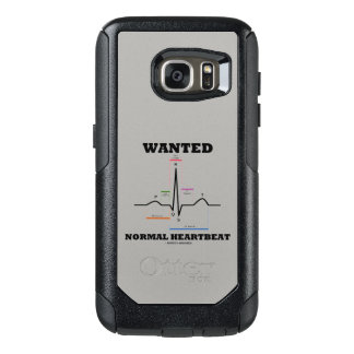 Wanted Normal Heartbeat ECG Electrocardiogram OtterBox Samsung Galaxy S7 Case
