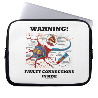 Warning! Faulty Connections Inside Neuron Synapse Computer Sleeve