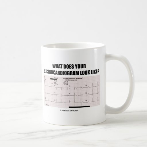 What Does Your Electrocardiogram Look Like? Classic White Coffee Mug