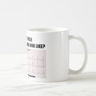 What Does Your Electrocardiogram Look Like? Coffee Mug