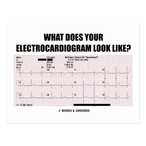 What Does Your Electrocardiogram Look Like? Post Cards