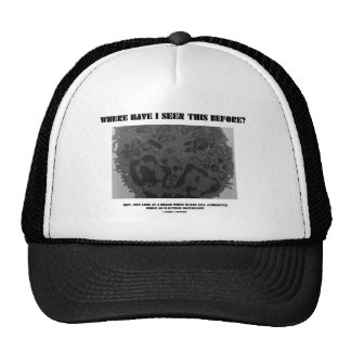 Where Have I Seen This Before? Leukocyte Mesh Hat