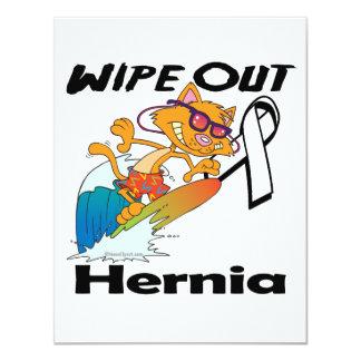Wipe Out Hernia Custom Invitations