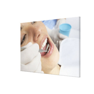 Woman, aged 27, being examined in a dentists canvas print