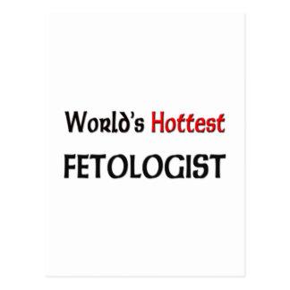 Worlds Hottest Fetologist Postcards