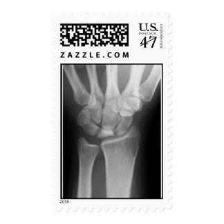wrist x-ray postage stamp