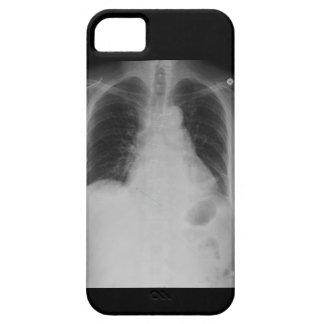 X caja de la casamata del iPhone 5 del ~ del rayo Funda Para iPhone 5 Barely There