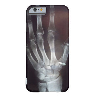 X caja del teléfono de la mano del rayo funda para iPhone 6 barely there