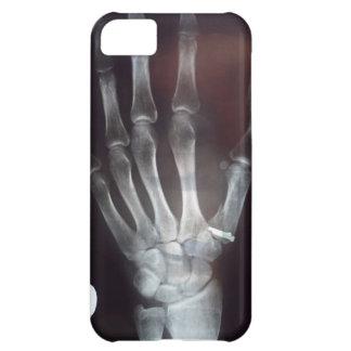 X caja del teléfono de la mano del rayo funda para iPhone 5C