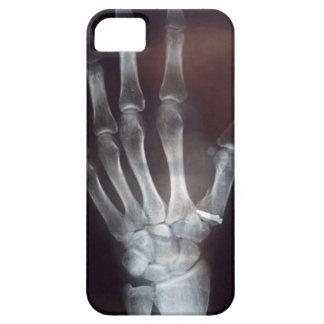 X caja del teléfono de la mano del rayo iPhone 5 carcasa