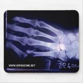 X-Hand Mouse Pad