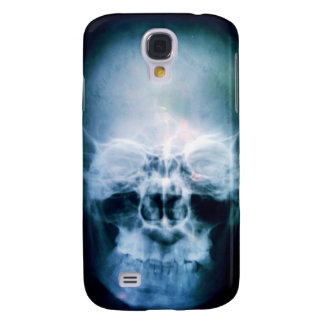 X-Head Samsung Galaxy S4 Case
