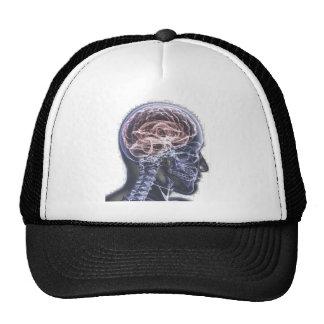 X-Ray Brain Mesh Hats