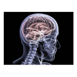 X-Ray Brain Post Card