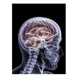 X-Ray Brain Postcard