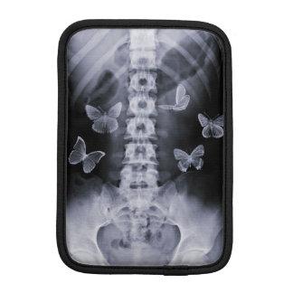 X-Ray Conceptual Butterflies iPad Mini Sleeve