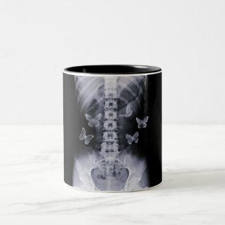 X-Ray Conceptual Butterflies Two-Tone Mug
