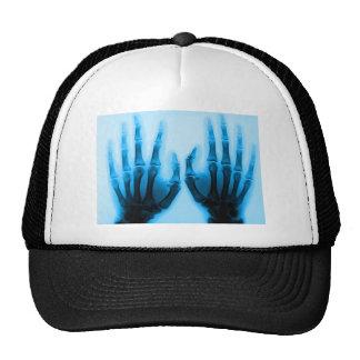 X Ray Eyes Mesh Hat