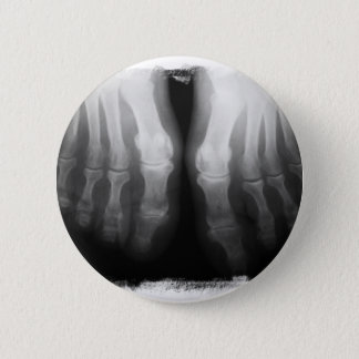 X-Ray Feet Human Skeleton Bones Black & White Button