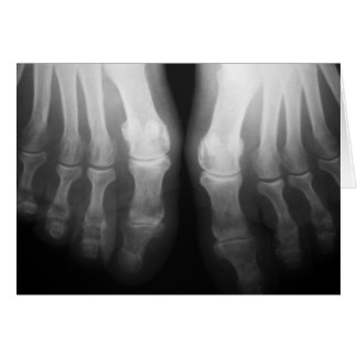 X-Ray Feet Human Skeleton Bones Black & White Card