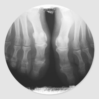 X-Ray Feet Human Skeleton Bones Black & White Classic Round Sticker