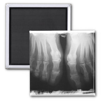 X-Ray Feet Human Skeleton Bones Black & White Magnet