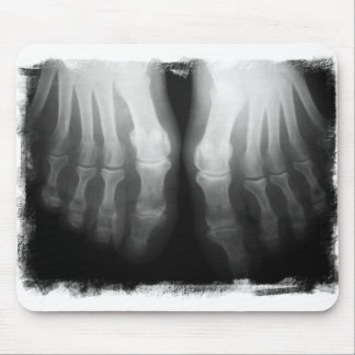 X-Ray Feet Human Skeleton Bones Black & White Mouse Pad