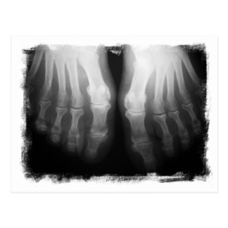 X-Ray Feet Human Skeleton Bones Black & White Postcard