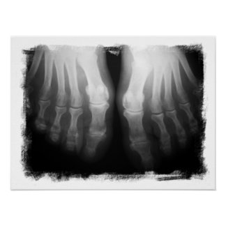 X-Ray Feet Human Skeleton Bones Black & White Poster