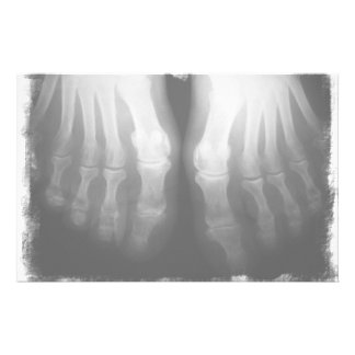X-Ray Feet Human Skeleton Bones Black & White Stationery