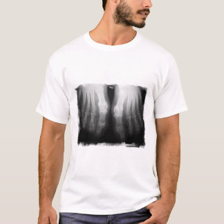 X-Ray Feet Human Skeleton Bones Black & White T-Shirt