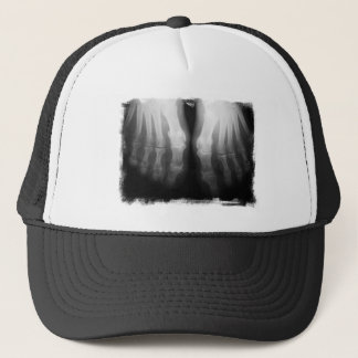 X-Ray Feet Human Skeleton Bones Black & White Trucker Hat